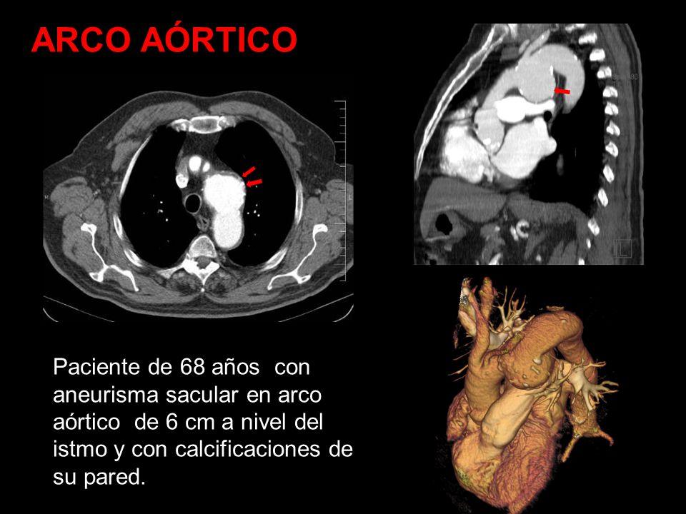 ARCO AÓRTICO Paciente de 68 años con aneurisma sacular en arco aórtico de 6 cm a nivel del istmo y con calcificaciones de su pared.
