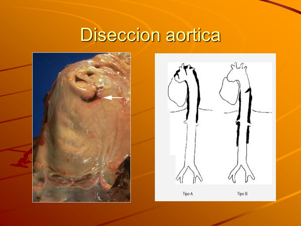Diseccion aortica