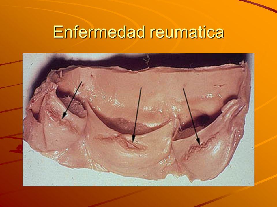 Enfermedad reumatica