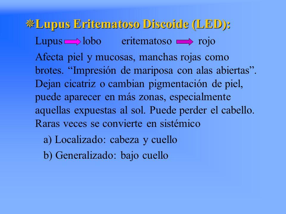 Lupus Eritematoso Discoide (LED):