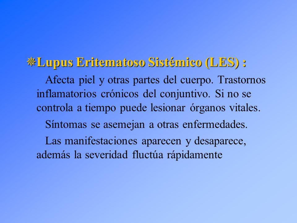 Lupus Eritematoso Sistémico (LES) :