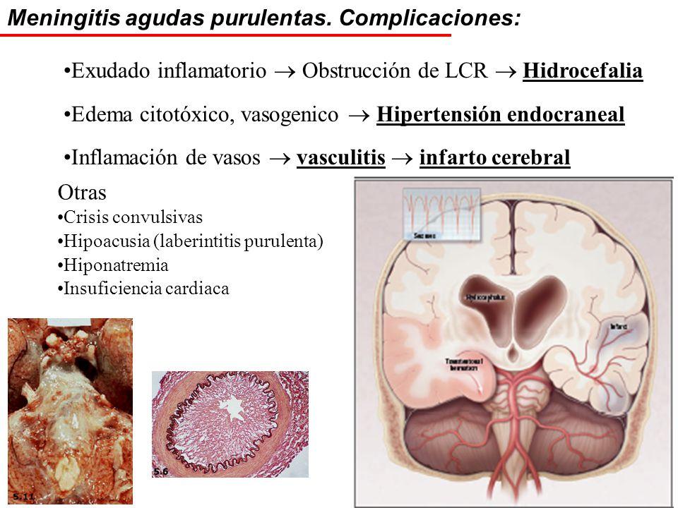 Meningitis agudas purulentas. Complicaciones: