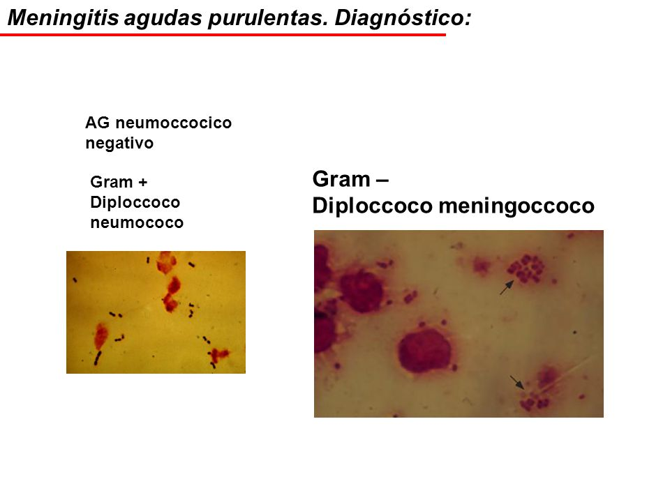 Meningitis agudas purulentas. Diagnóstico: