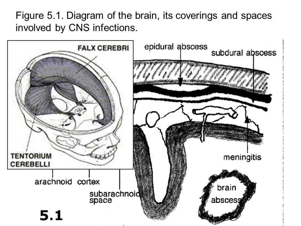Figure 5.1. Diagram of the brain, its coverings and spaces involved by CNS infections.