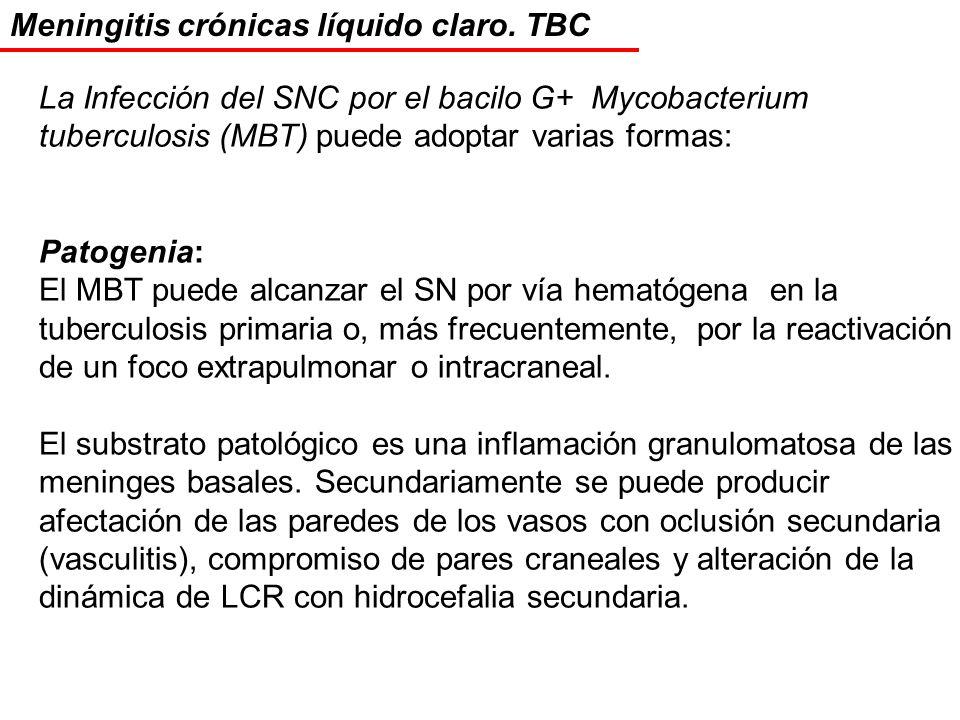 Meningitis crónicas líquido claro. TBC