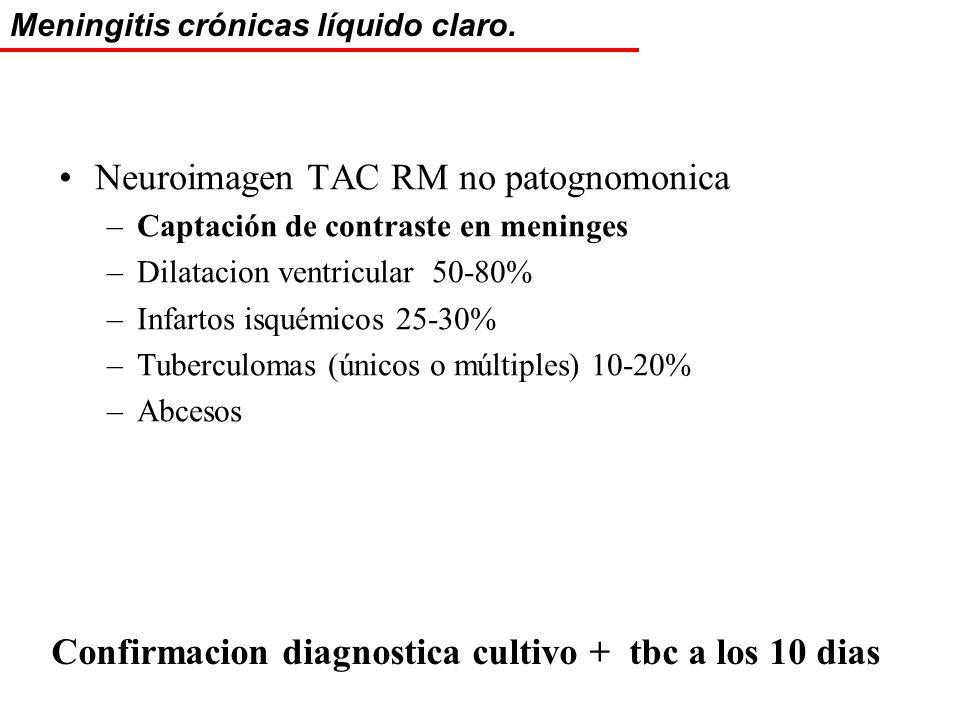 Neuroimagen TAC RM no patognomonica