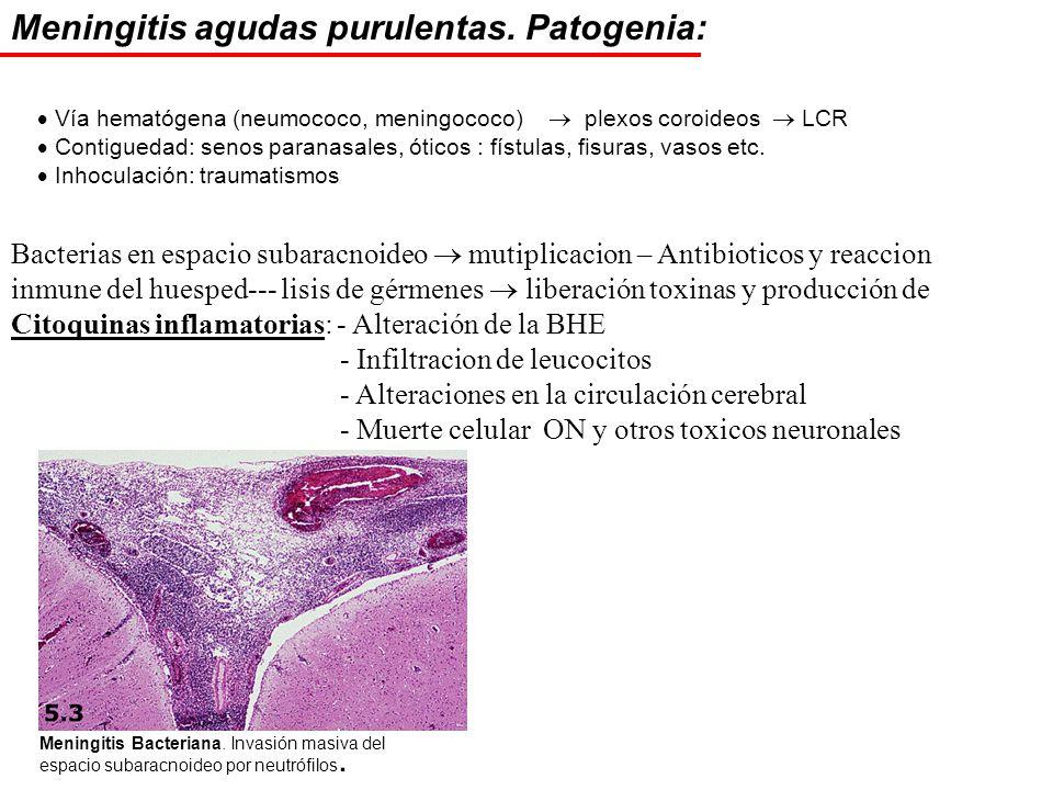 Meningitis agudas purulentas. Patogenia: