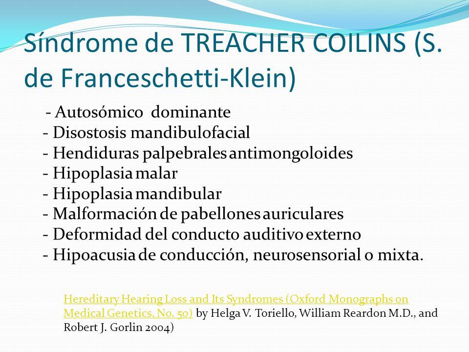 Síndrome de TREACHER COILINS (S. de Franceschetti-Klein)