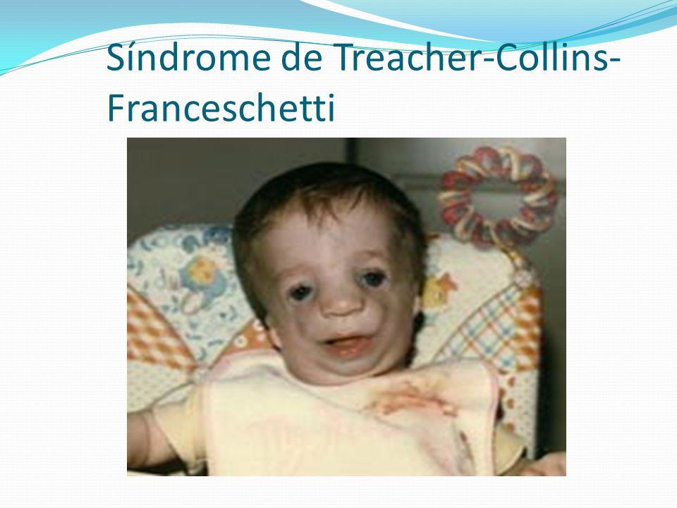 Síndrome de Treacher-Collins-Franceschetti