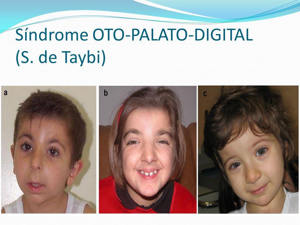 Síndrome OTO-PALATO-DIGITAL (S. de Taybi)