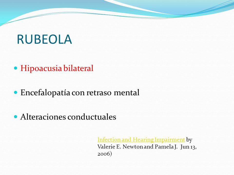 RUBEOLA Hipoacusia bilateral Encefalopatía con retraso mental