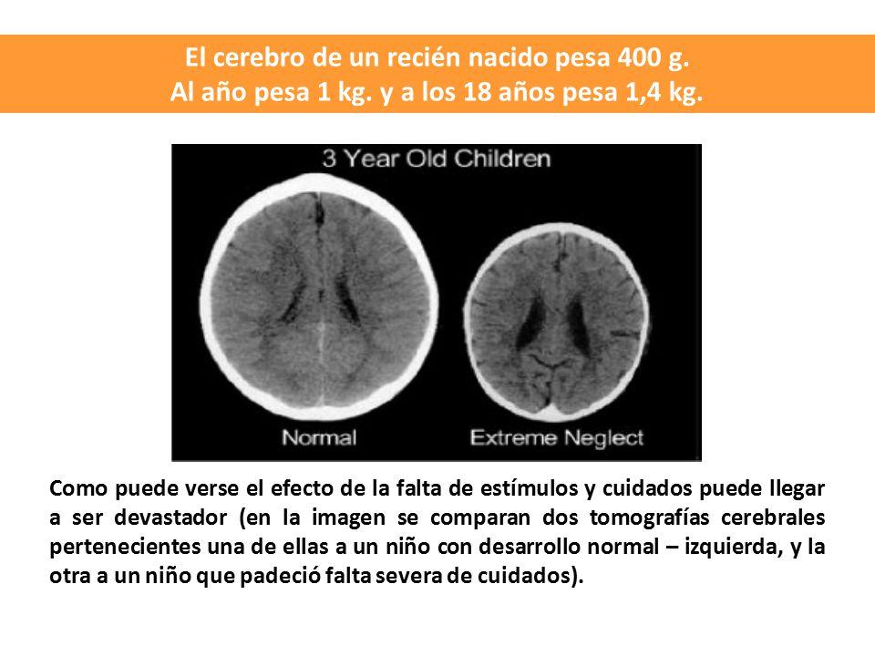 El cerebro de un recién nacido pesa 400 g.