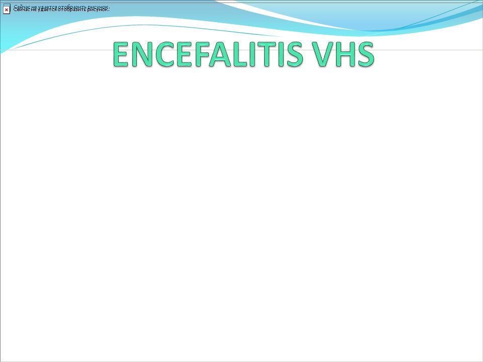 ENCEFALITIS VHS Encefalitis esporádica más frecuente.