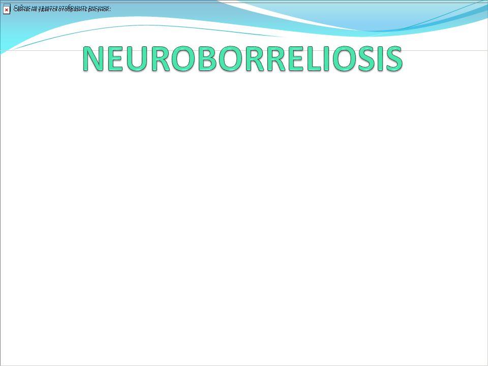 NEUROBORRELIOSIS Su agente infeccioso es B borgdorferi.