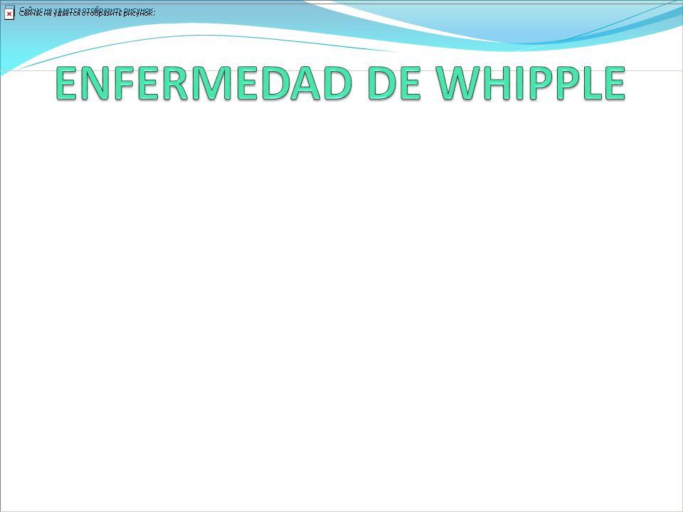 ENFERMEDAD DE WHIPPLE Enfermedad rara.