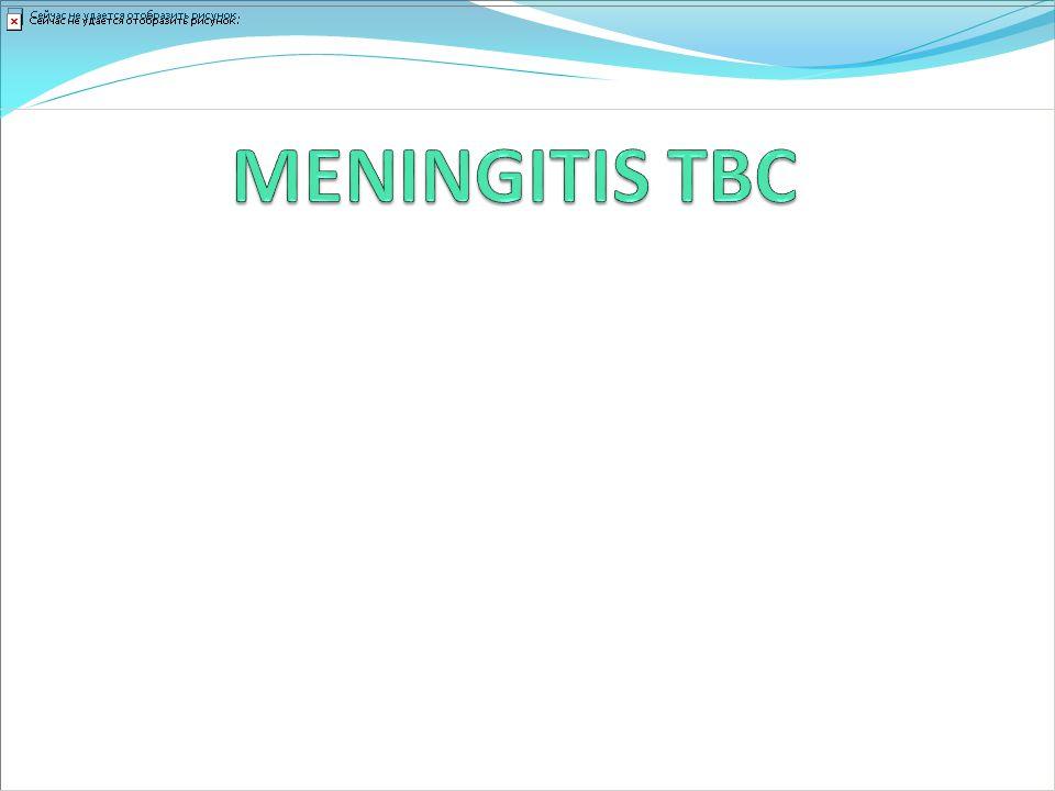 MENINGITIS TBC La infección del SNC puede ser silente y reactivarse tardíamente sin enfermedad pulmonar.