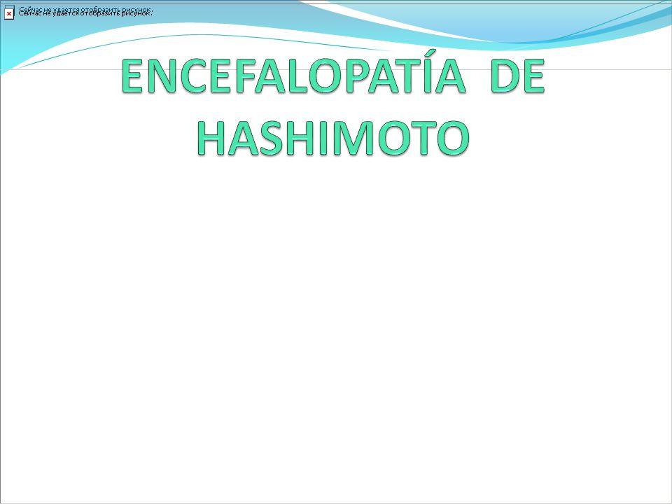 ENCEFALOPATÍA DE HASHIMOTO