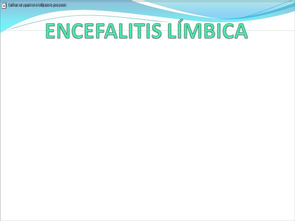 ENCEFALITIS LÍMBICA Se caracteriza por un pérdida neuronal, gliosis e infiltrados perivasculares.
