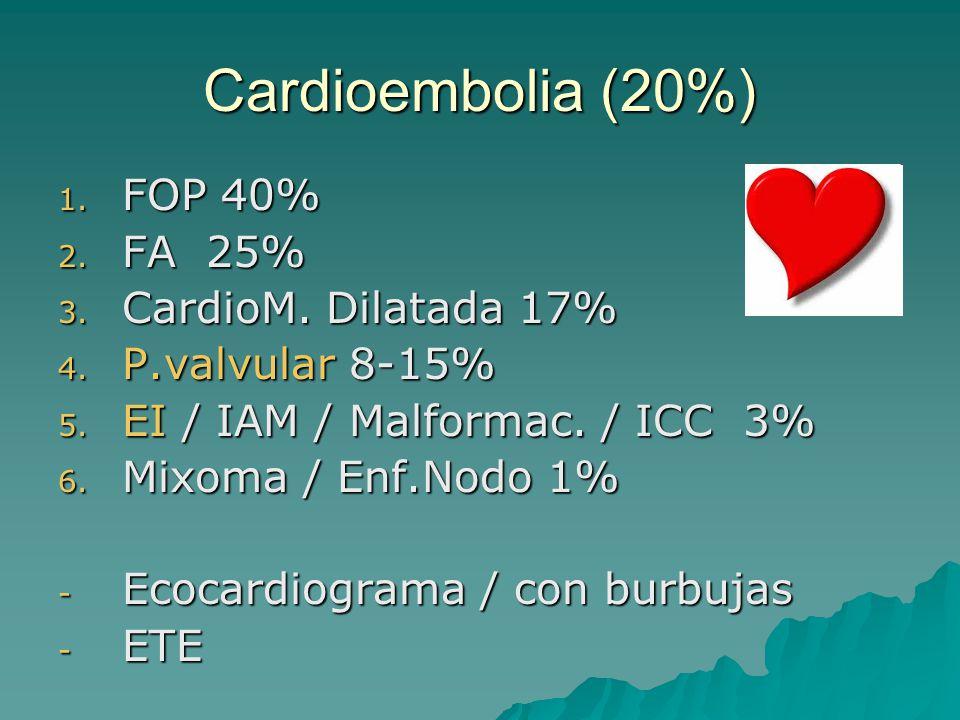 Cardioembolia (20%) FOP 40% FA 25% CardioM. Dilatada 17%