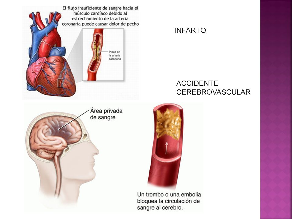 INFARTO ACCIDENTE CEREBROVASCULAR