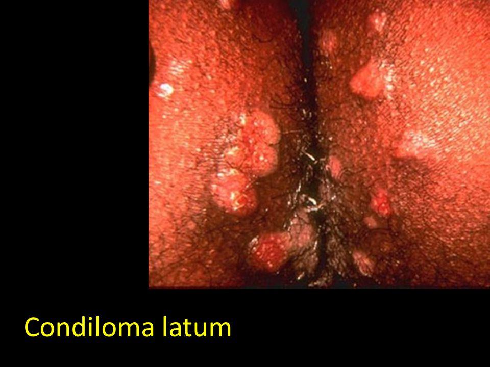 Condiloma latum