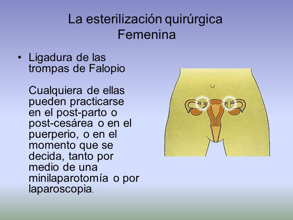 La esterilización quirúrgica Femenina