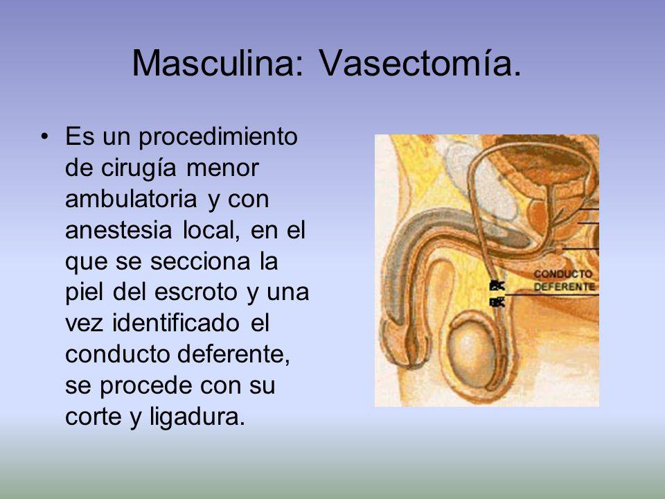 Masculina: Vasectomía.