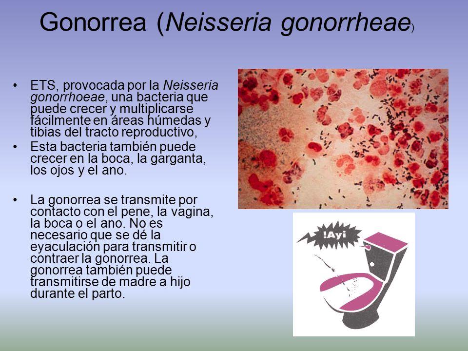 Gonorrea (Neisseria gonorrheae)
