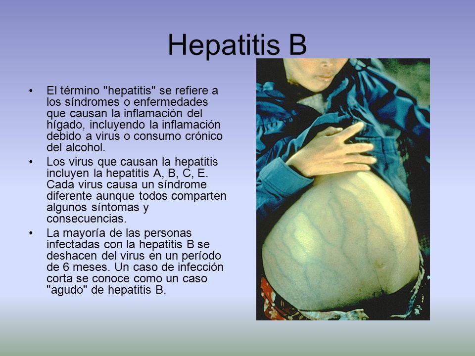 Hepatitis B