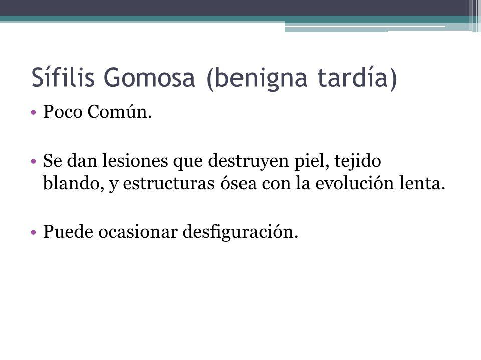 Sífilis Gomosa (benigna tardía)