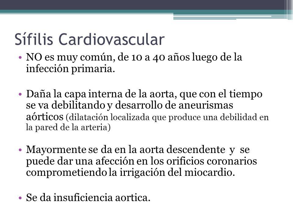 Sífilis Cardiovascular