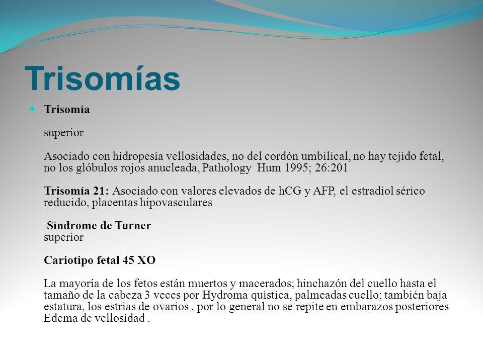Trisomías