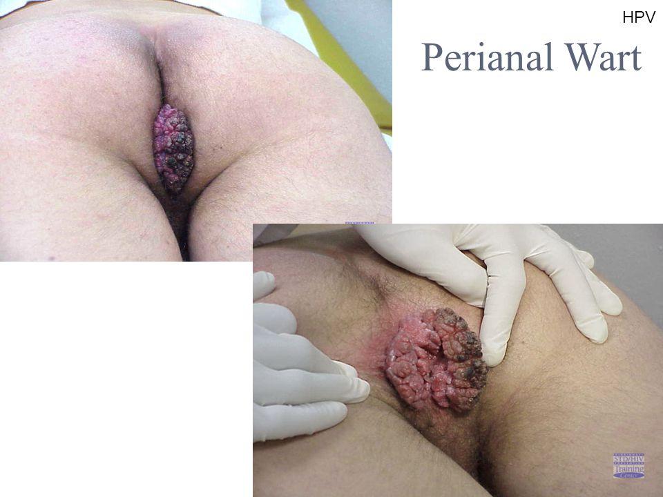 HPV Perianal Wart