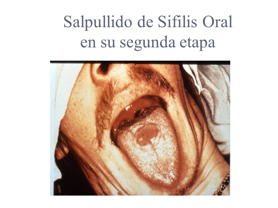 Salpullido de Sifilis Oral