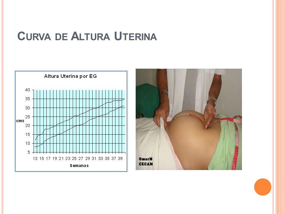Curva de Altura Uterina