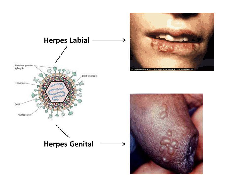 Herpes Labial Herpes Genital