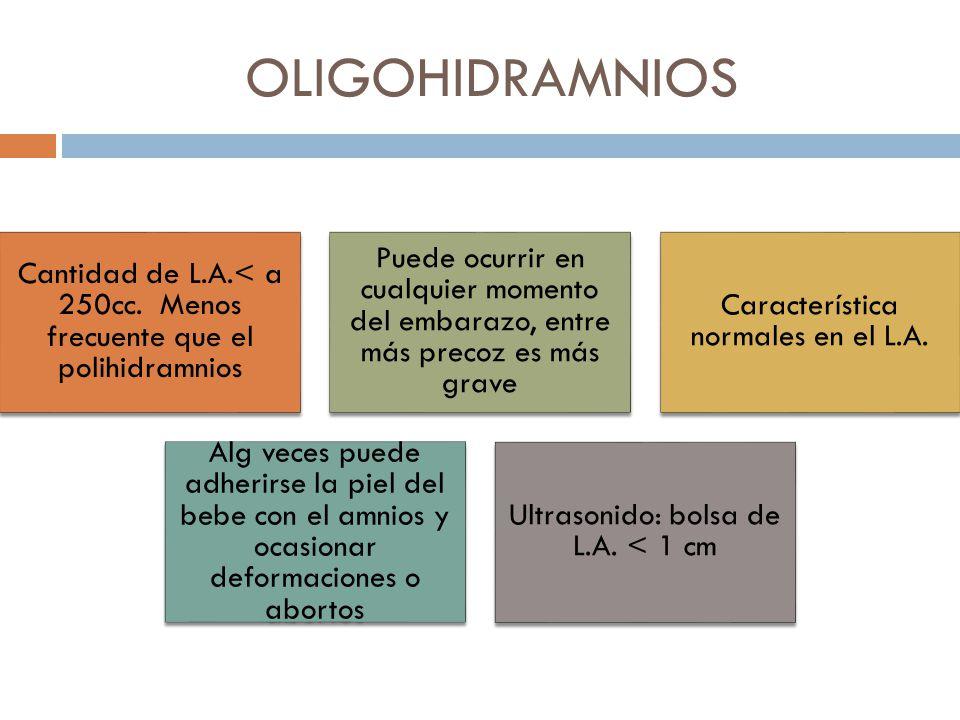 OLIGOHIDRAMNIOS Cantidad de L.A.< a 250cc. Menos frecuente que el polihidramnios.