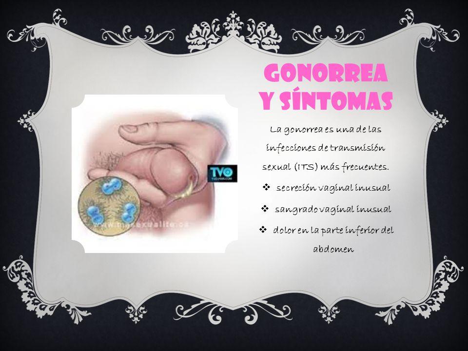 Gonorrea y síntomas La gonorrea es una de las infecciones de transmisión sexual (ITS) más frecuentes.