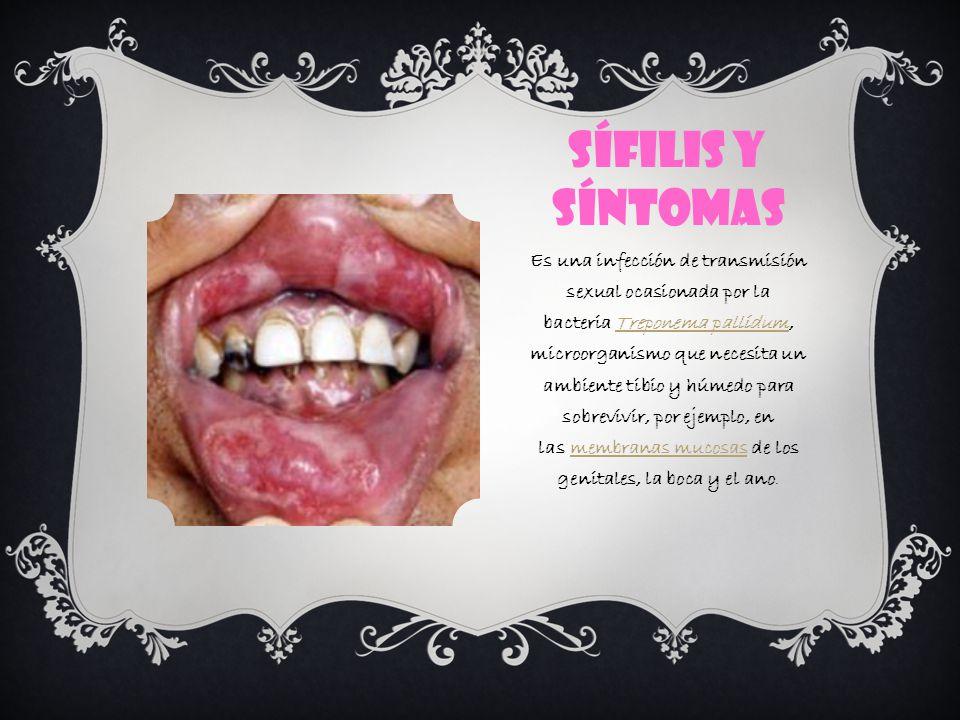 Sífilis y síntomas