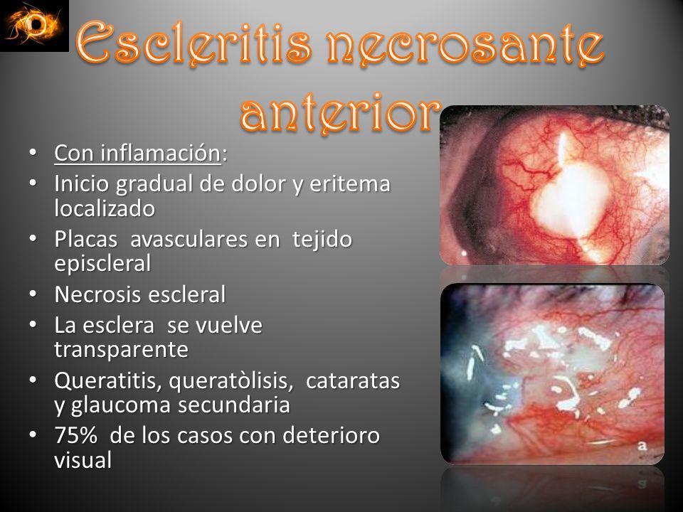 Escleritis necrosante anterior