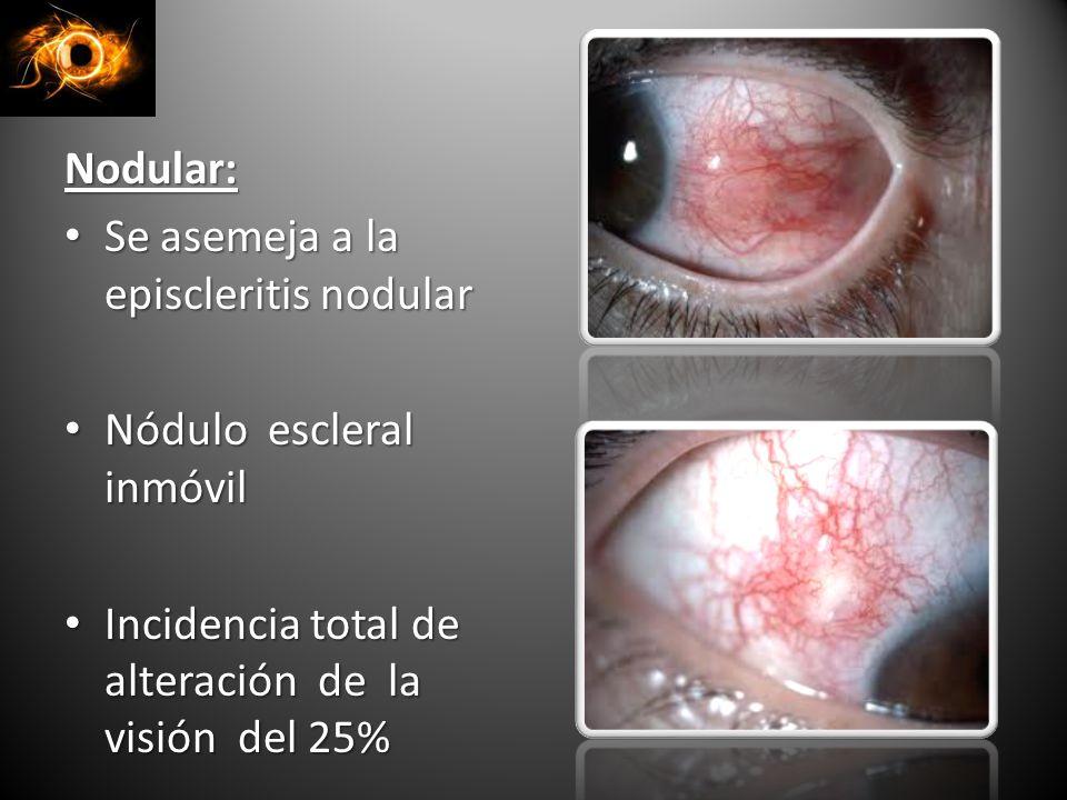 Nodular: Se asemeja a la episcleritis nodular. Nódulo escleral inmóvil.