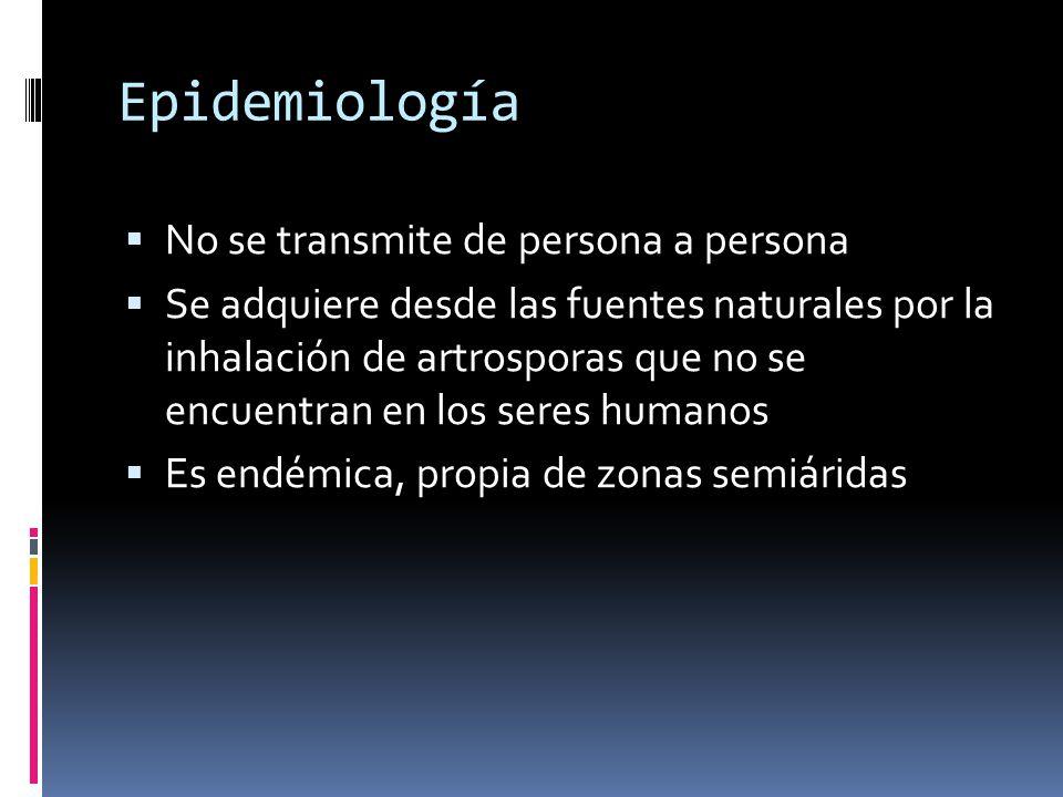 Epidemiología No se transmite de persona a persona