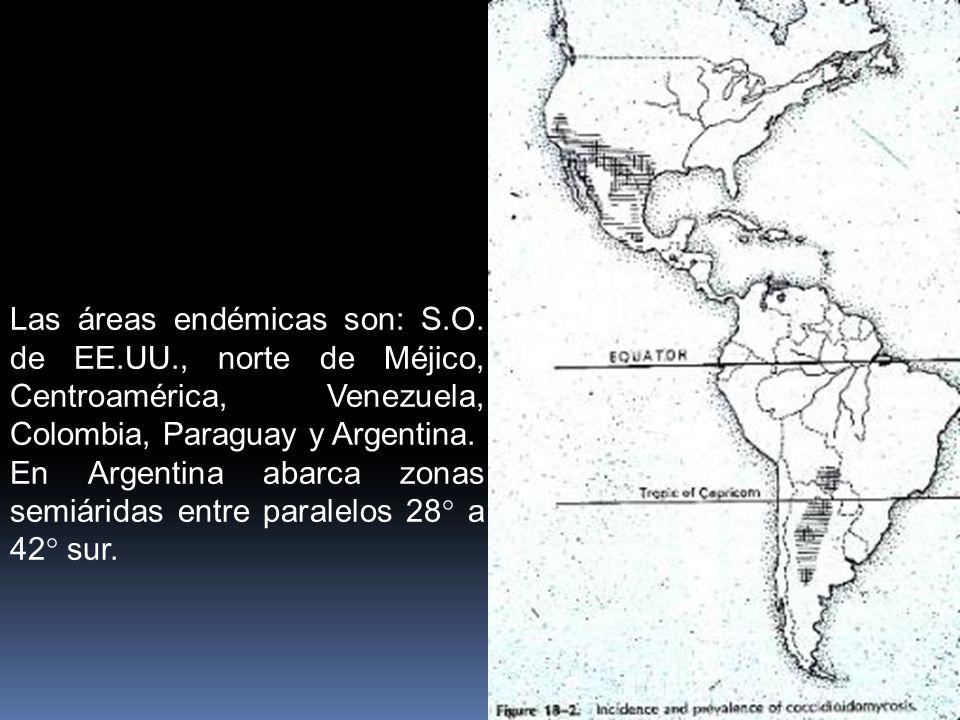 Las áreas endémicas son: S. O. de EE. UU