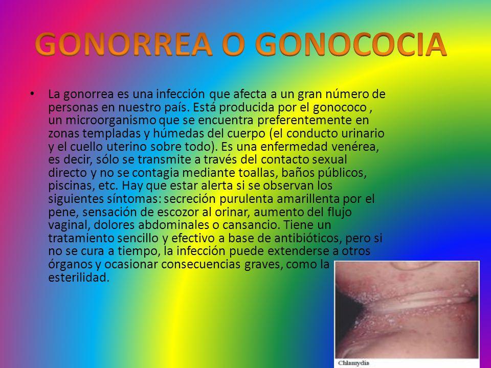 GONORREA O GONOCOCIA