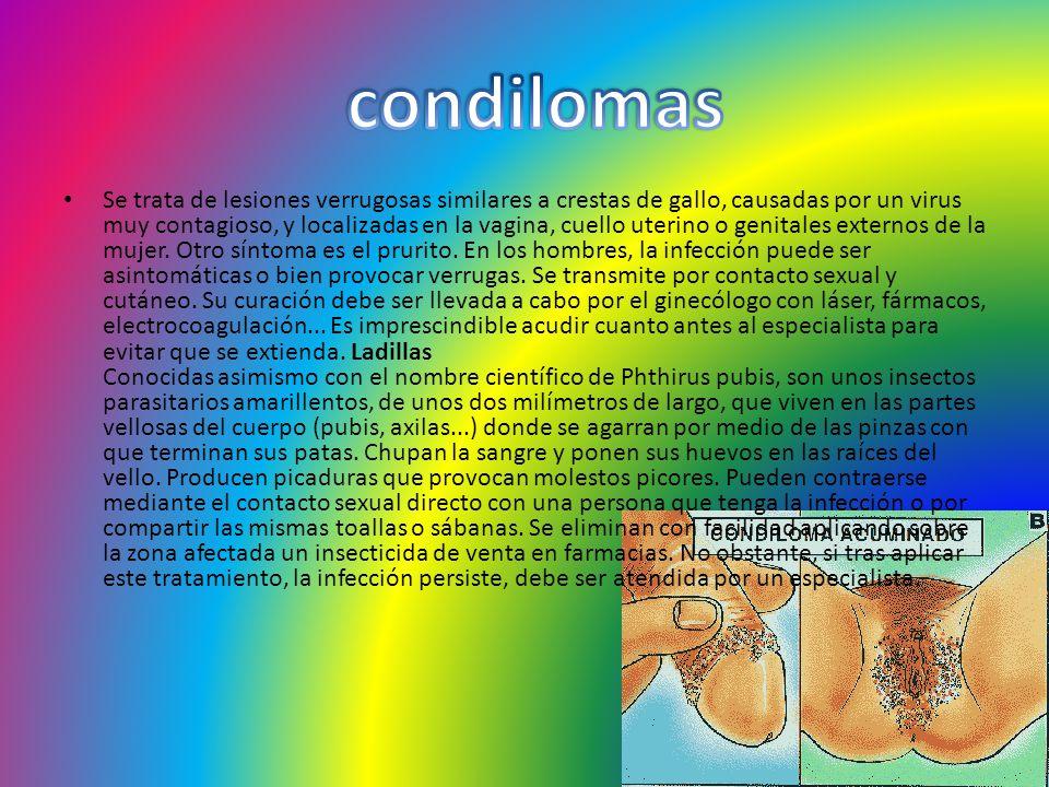 condilomas