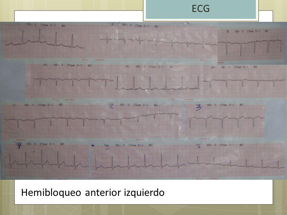 ECG Hemibloqueo anterior izquierdo