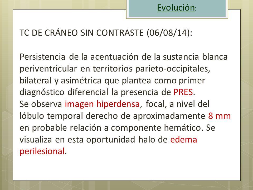 Evolución: TC DE CRÁNEO SIN CONTRASTE (06/08/14):