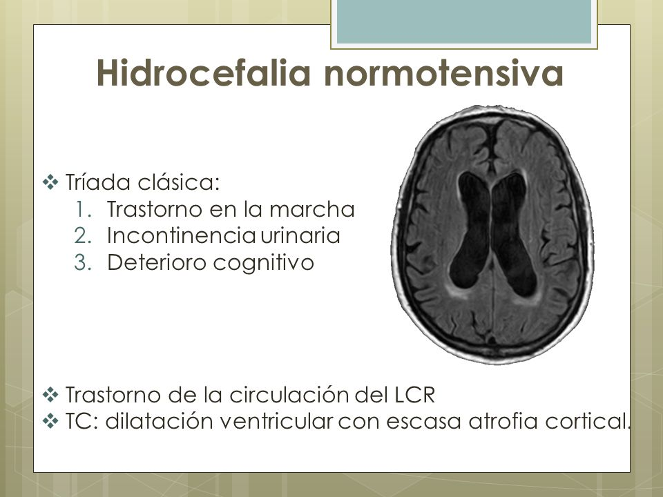 Hidrocefalia normotensiva