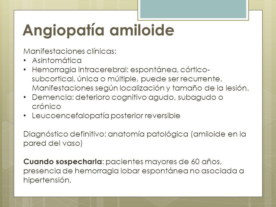 Angiopatía amiloide Manifestaciones clínicas: Asintomática
