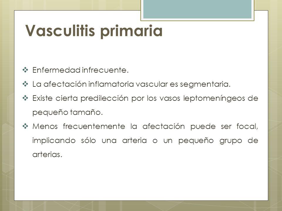 Vasculitis primaria Enfermedad infrecuente.